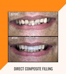 Direct Composite Filling