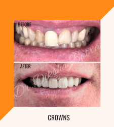 Crowns - clinic