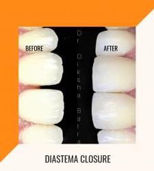 Diastema Closure