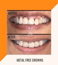 Metal Free Crowns