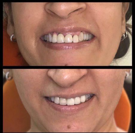 dental bridge 1