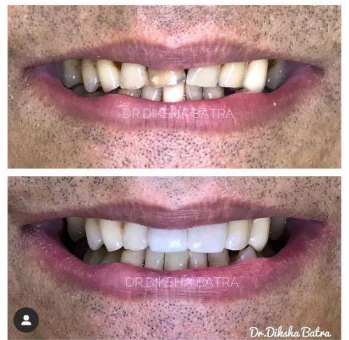 dental bridge 2